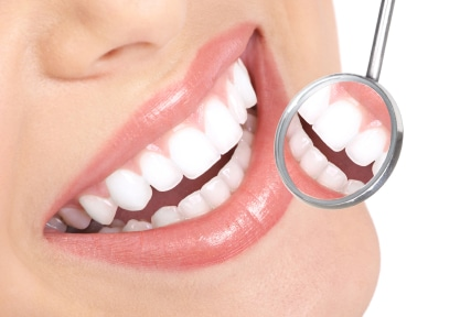 Tooth Whitening Comparison
