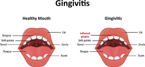 gum-disease1