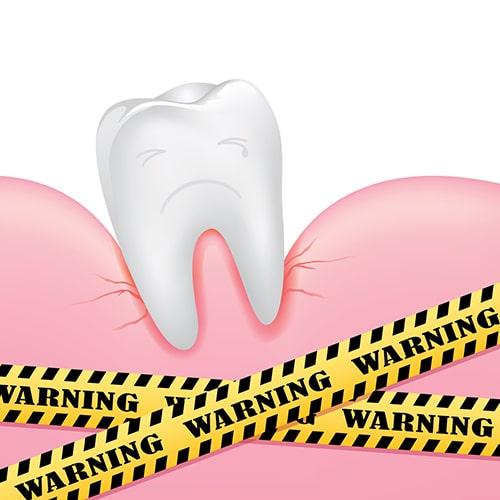 gum-disease2