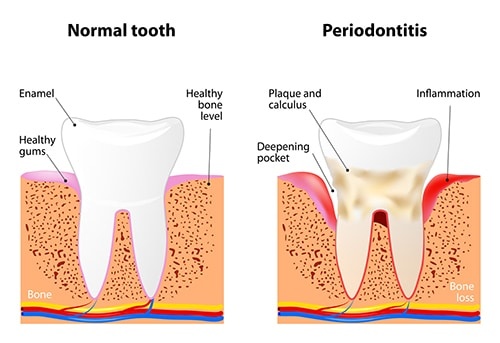 can gum disease be treated with natural remedies?gum disease3 other natural treatments